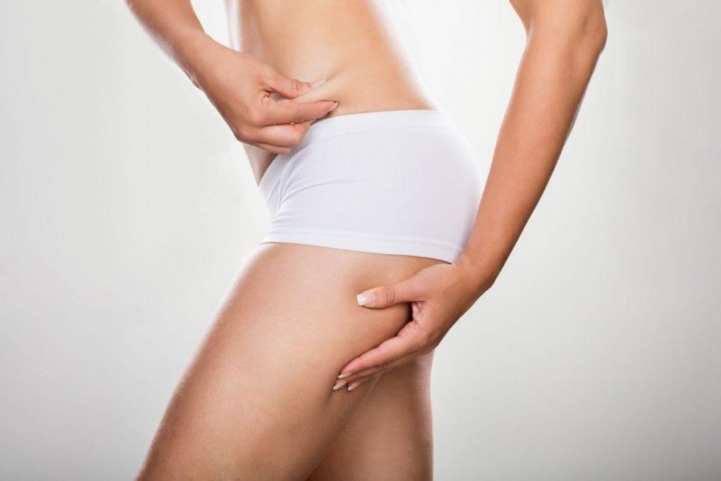 Kobieta po liposukcji ud w klinice Genesis