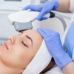 Laserowe usuwanie blizn po trądziku