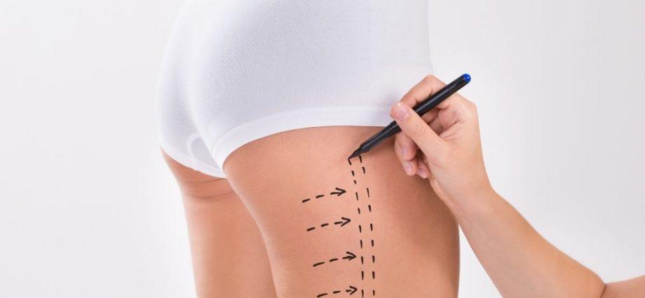 Liposukcja ud w Klinice Genesis